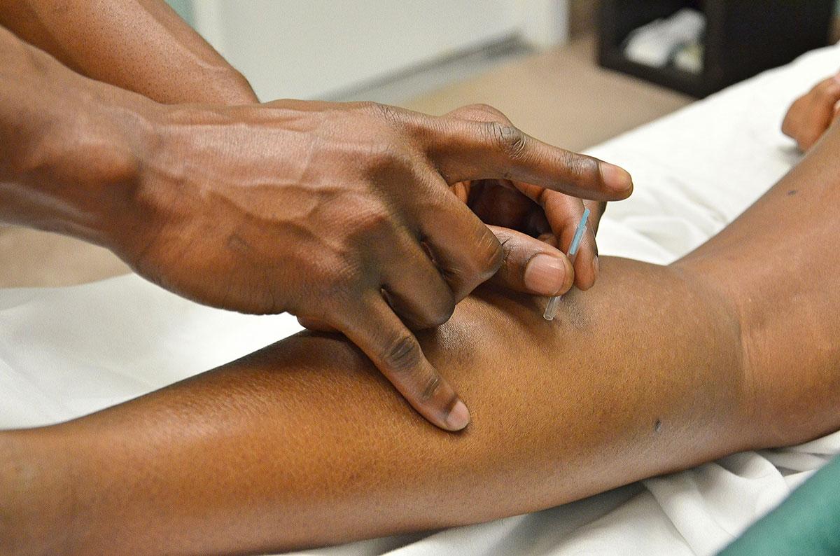 FAQ Acupuncture