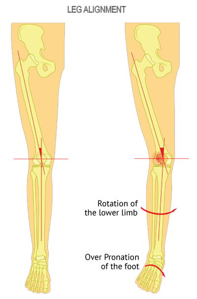 Leg alignment